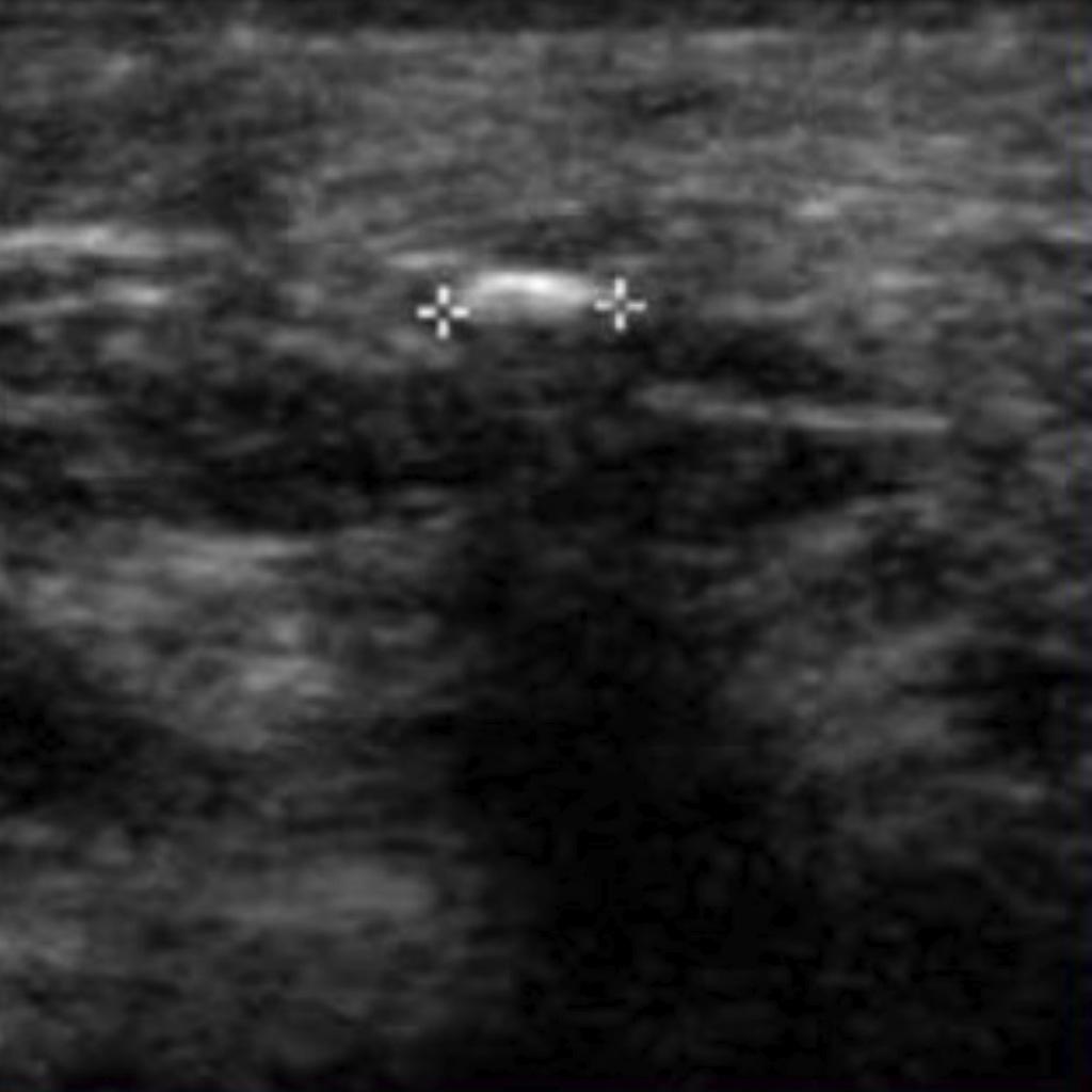 BiomarC Ultrasound Image