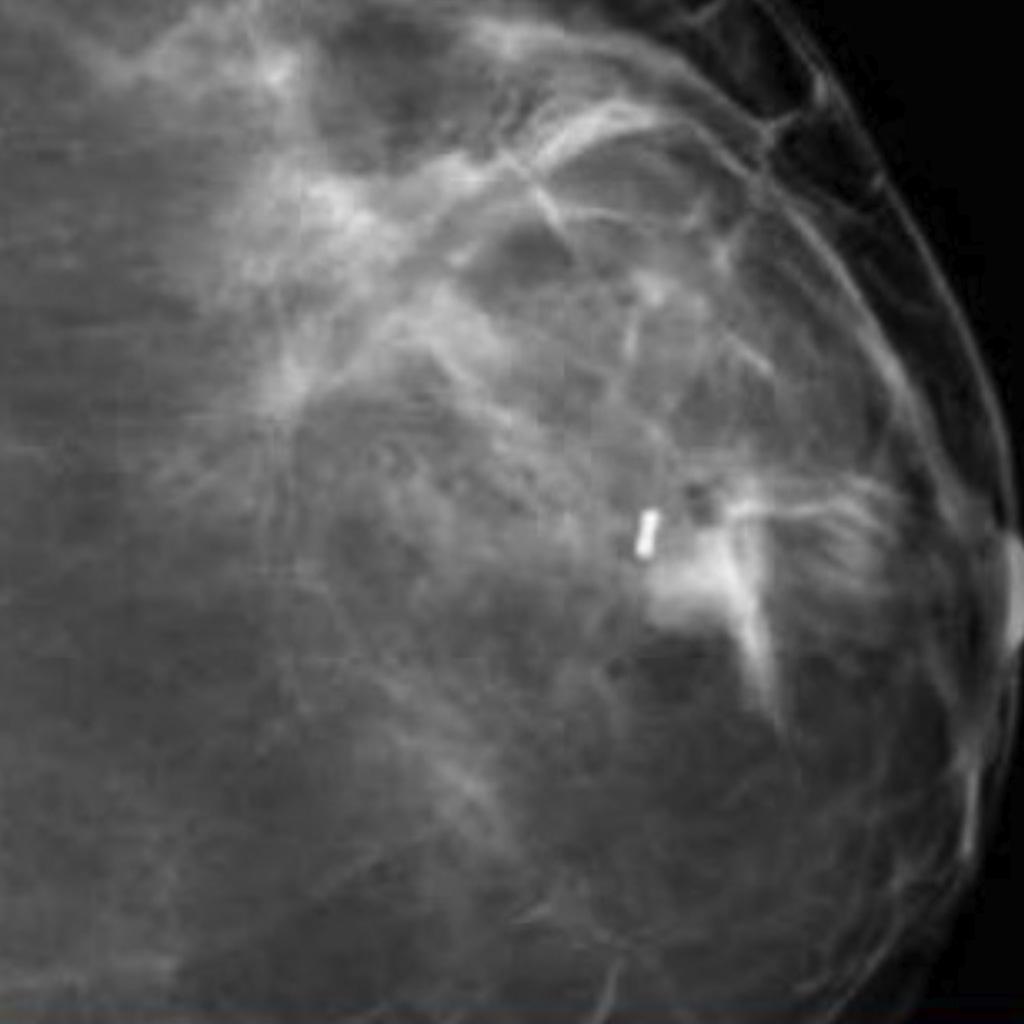 BiomarC X-Ray Image