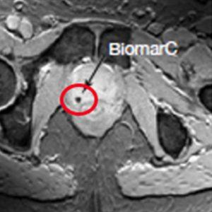 MRI of BiomarC